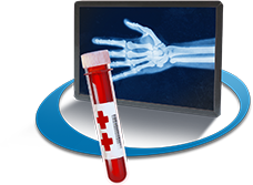 Hand x-ray and blood vial of a patient