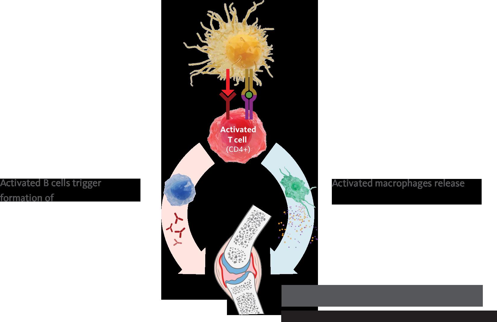 Role of T Cells in Rheumatoid Arthritis   ORENCIA® (abatacept)